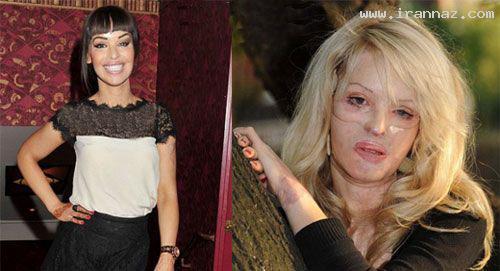 مجری و مانکنی زیبا قربانی اسید پاشی شد! +عکس