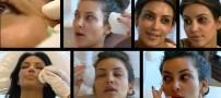 عکس های لو رفته از زن مشهور هنگام تزریق بوتاکس