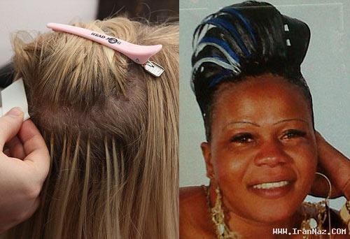 زنی 34 ساله که قربانی جراحی زیبایی شد! +تصاویر
