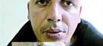 مردی که دهان خود را با نخ و سوزن دوخت!!+ عکس