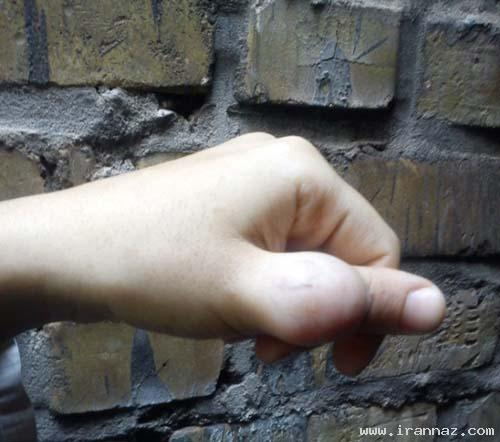 بیماری بسیار وحشتناک دختر 18 ساله ایرانی +عکس