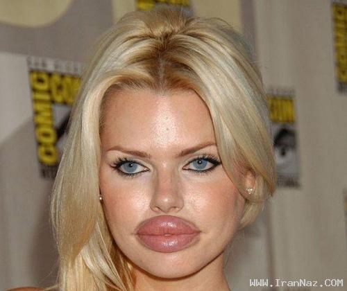 زنانی احمق که با جراحی لقب بزرگترین لب را دارند!!