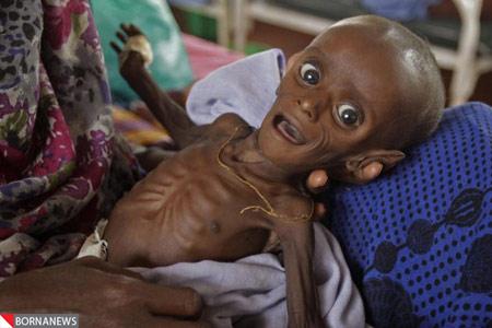 نوزادی که چه بود و چه شد !+ تصاویر