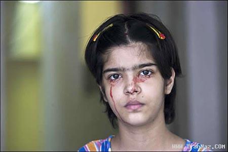 دختر 14 ساله و عجیبی که خون گریه میکند +تصاویر