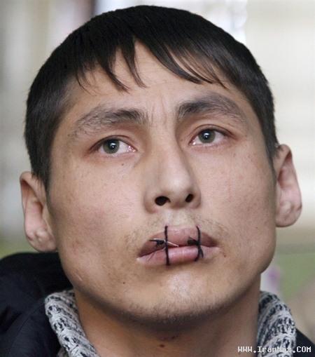 اعتراض دردناک زندانیان با دوختن دهان خود!! +تصاویر