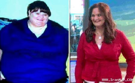 کاهش وزن باور نکردنی یک زن پس از جراحی +عکس