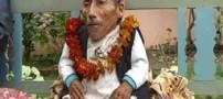 مردی عجیب با 72 سال سن و 12 کیلو وزن!! +عکس