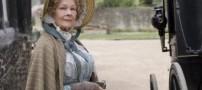 خانم بازیگر برنده اسکار در آستانه نابینا شدن +عکس