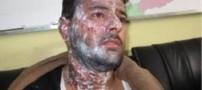 پاشیدن اسید به روی فیلمبردار ایران در كابل +عکس