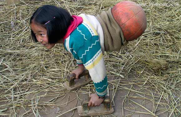 زندگی دختری عجیب که با نیمه توپ راه میرود +تصاویر
