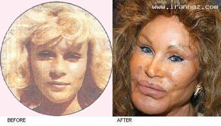 عکس های وحشتناکترین زن قربانی جراحی پلاستیک