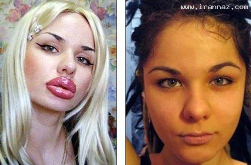 دختری که رکورد بزرگ ترین لبهای جهان را دارد +عکس