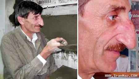 مردی با خنده دارترین و بزرگ ترین بینی جهان! +عکس ، www.irannaz.com