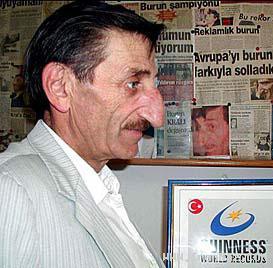 http://webneeds.ir/ |   مردی با خنده دارترین و بزرگ ترین بینی جهان! +عکس
