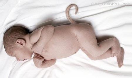 به دنیا آمدن کودکی بسیار عجیب با دو صورت! +تصاویر