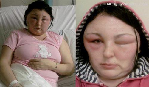 دختری 25 ساله و زیبایی که شبیه هیولا شد +عکس