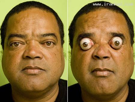 مردی با عجیب و جالب ترین چشم های جهان +عکس