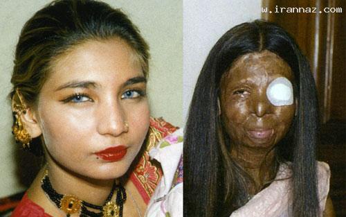 خودکشی دردناک زنی زیبا بخاطر زشت شدن +عکس ، www.irannaz.com