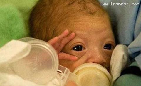 زنده شدن نوزادی پس از 12 ساعت ماندن در سردخانه