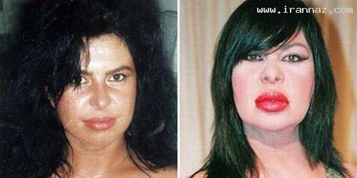 زنی که پس از عمل زیبایی شبیه هیولا شده!! +عکس