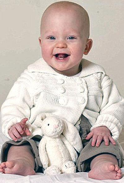بیماری عجیب کودکی که اگر نخندد خواهد مرد +عکس