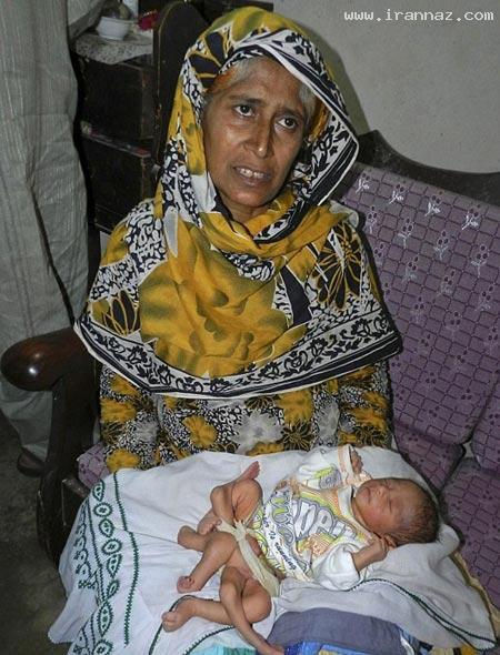 تولد عجیب و باورنکردنی نوزاد 6 پا در پاکستان! +عکس