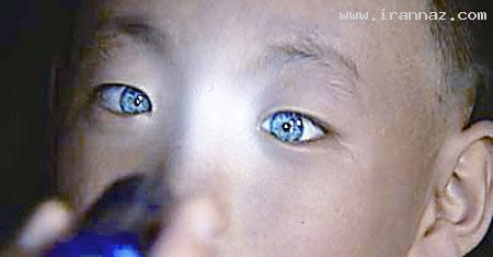 منحصر به فردترین و جالبترین چشم های دنیا! +عکس