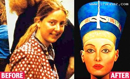 زنی که 28 سال پیش عمل زیبایی کرد تا....؟! +عکس