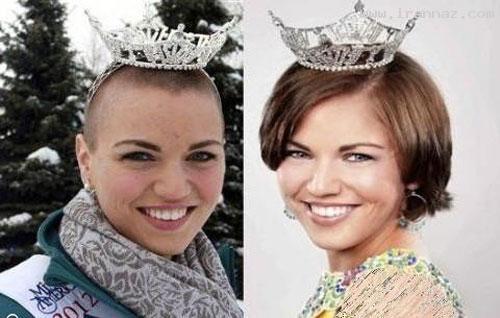 ملکه زیبایی آلاسکا موهای سر خود را فروخت +عکس