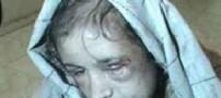 شکنجه دردناک یک نو عروس 15 ساله افغان +عکس