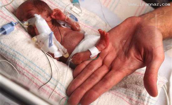 تولد کوچکترین نوزاد جهان فقط با 340 گرم وزن +عکس