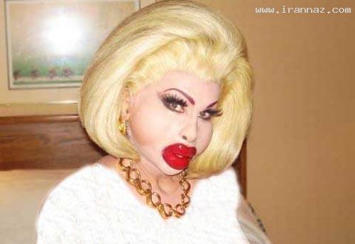 این خانم جراحی زیبایی کرد تا زیبا شود اما ... +عکس