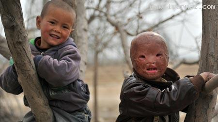 زندگی دردناک کودکی 6 ساله و بدون صورت !! +تصاویر