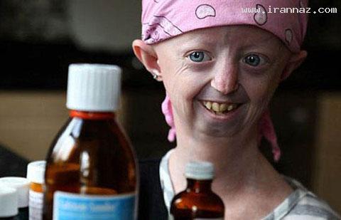 دختر جوانی با چهره ای مثل پیرزن 104 ساله! +عکس