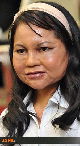 جراحی دیدنی و زیبایی زنی که یکباره پیرشد +عکس