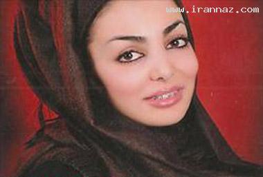 دختری ایرانی که ركورد دار ارتودنسی دنیا شد +عکس