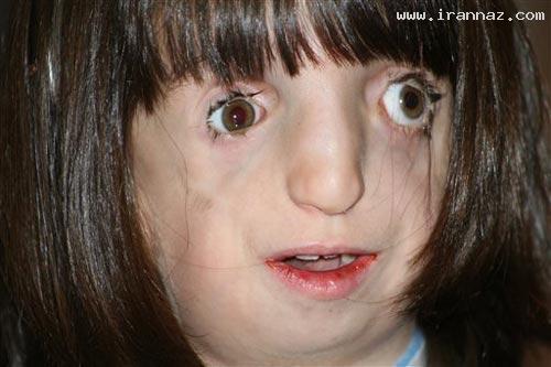 دختری زشت ولی با استعدادی شگفت انگیز! +تصاویر ، www.irannaz.com