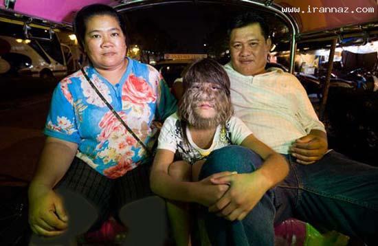 عکس های باورنکردی از دختر گرگ نما یا دختر میمونی