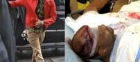 این دختر قربانی یک درگیری بر سر ریحانا شد! +تصاویر