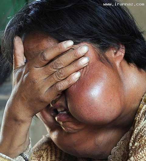 تبدیل این خانم به یک هیولا با ابتلا به سرطان! +عکس