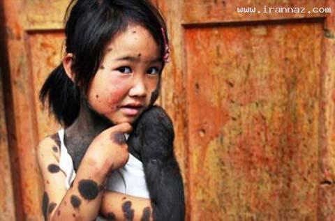 دخترکی معصوم با ترسناک ترین بیماری جهان +تصاویر