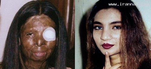 خودکشی دردناک زنی بخاطر وحشتناک شدن +عکس
