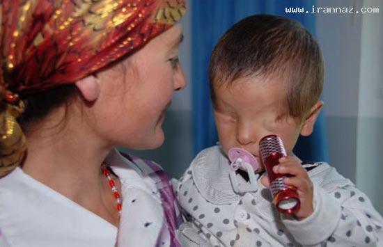 تصاویری عجیب از کودکی که بدون چشم به دنیا آمد!!