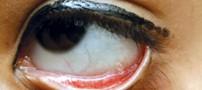 چشم های بسیار عجیب دختر هندی!!