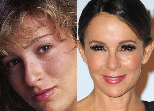 زنان مشهور که توسط عمل جراحی زیبا شدند +عکس