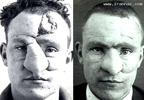 عکس هایی جالب از اولین جراحی پلاستیک در جهان