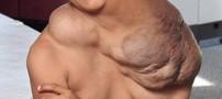 پسری با تومور وحشتناک و عجیب در گردنش! +عکس