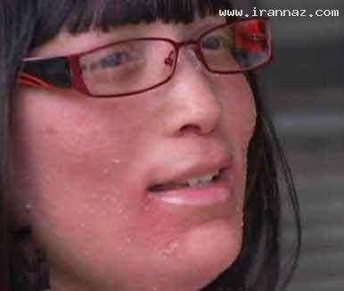زنی به جای مو روی صورتش ناخن می روید + عکس