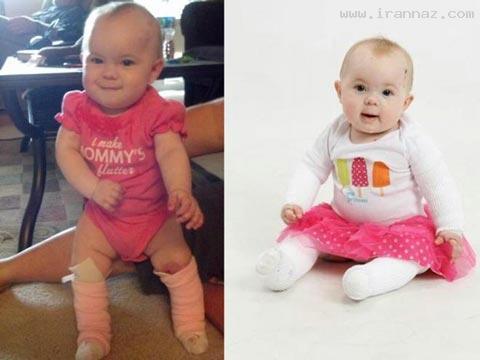 بیماری دردناک نوزادی 9 ماهه و بدون پوست پا +عکس
