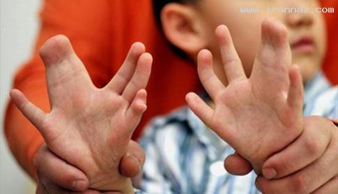 پسری بسیار عجیب با 30 انگشت دست و پا! +تصاویر
